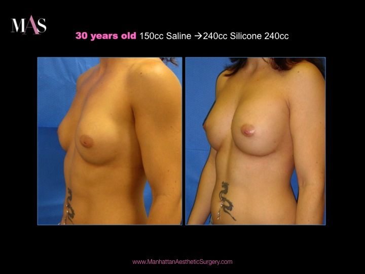 saline breast implants. saline breast implants 5