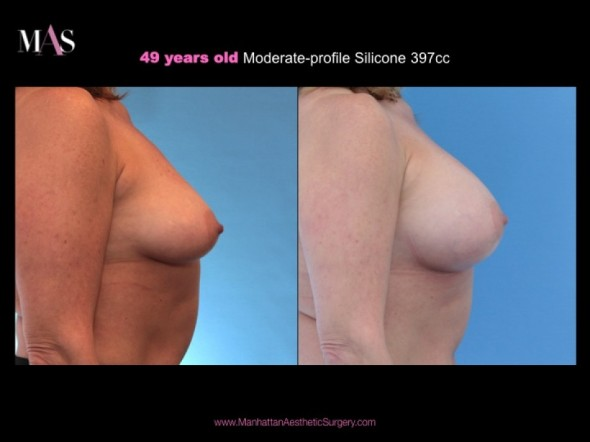before and after breast augmentation, breast enlargement new york city, breast enlargement nyc, breast augmentation nyc, plastic surgeon nyc, plastic surgeon new york city, dr. nicholas vendemia, MAS, Manhattan Aesthetic Surgery