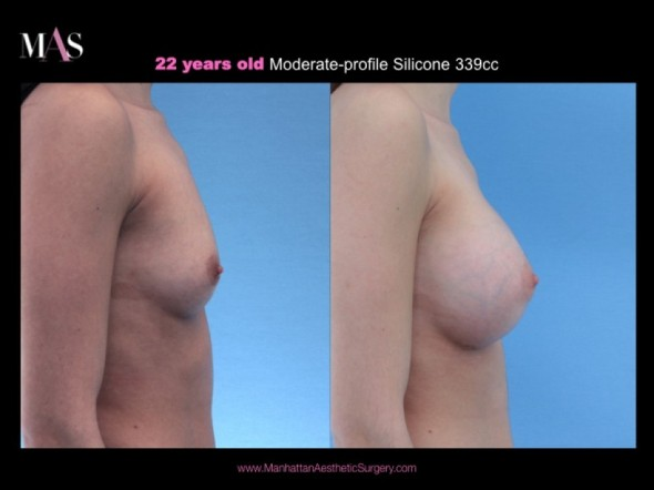 Before and After Breast Augmentation by New York Plastic Surgeon Dr. Nicholas Vendemia | 917-703-7069 | Breast Enlargement New York | Breast Enlargement NYC | Breast Augmentation NYC