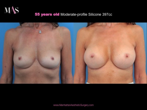 Before and After Breast Augmentation by New York Plastic Surgeon Dr. Nicholas Vendemia of MAS | 917-703-7069