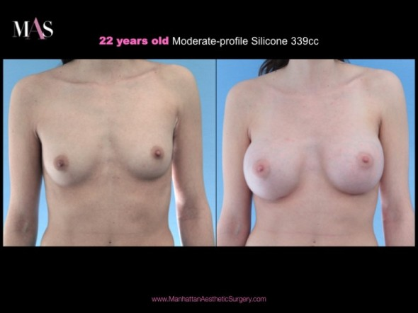 Before and After Breast Enlargement by New York Plastic Surgeon Dr. Nicholas Vendemia of MAS | 917-703-7069